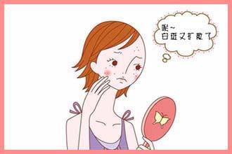 导致花季女性白斑的原因